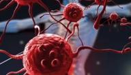 ما هو مرض لوكيميا الدم