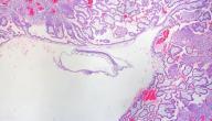 مستويات هرمون الحمل