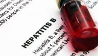 علامات الإصابة بفيروس الكبد
