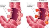 معلومات عن مرض الناسور