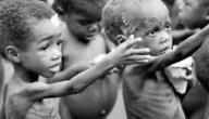 ما هي الامراض الناتجة عن سوء التغذية