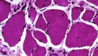 مرض ضمور العضلات دوشين