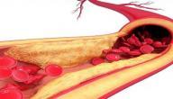 متلازمة الدهون الفسفورية