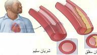 اعراض تصلب الشراين