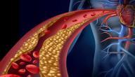 افضل علاج لخفض الكوليسترول