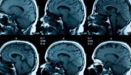 اعراض شلل الدماغ عند الاطفال