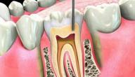 افضل علاج لالتهاب عصب الاسنان