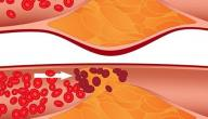 انخفاض الكولسترول في الدم