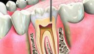 تهدئة الم عصب الاسنان