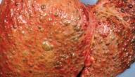 الفرق بين تليف الكبد وتشمع الكبد