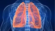 التهاب الرئة الحاد