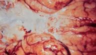 التهاب السحايا عند الرضع