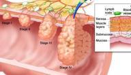 جراحة سرطان المستقيم