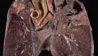 سبل الوقاية من مرض السل