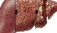 سرطان الكبد هل له علاج
