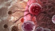 سرطان الثدي وراثي