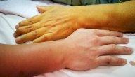 اعراض مرض ابو صفار