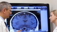 اعراض سرطان الدماغ