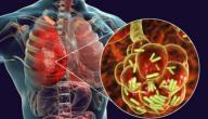 كم مدة علاج الالتهاب الرئوي الحاد