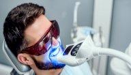 كيف ازيل تصبغات الاسنان