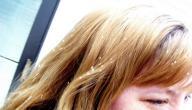 اسباب قشرة الشعر