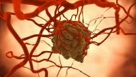 أسباب مرض السرطان