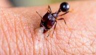 علاج قرصة النمل