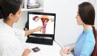 أعراض ميلان الرحم لليسار