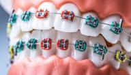 كل ما تريد معرفته عن تقويم الأسنان
