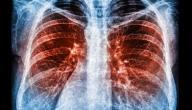 من يجب أن يقوم بفحص سرطان الرئة؟