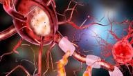 ما أسباب الاعتلال العصبي المحيطي؟