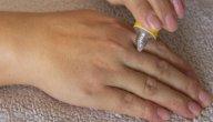 علاج اكزيما اليدين