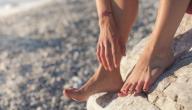علاج حرارة القدمين