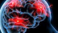 ما هي أعراض مرض الصرع