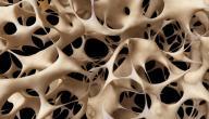 مرض هشاشة العظام عند النساء