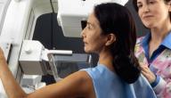 ما هو سرطان الثدي