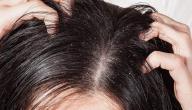 اسباب قشرة الشعر وعلاجها