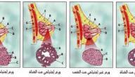 سرطان الثدي الخبيث
