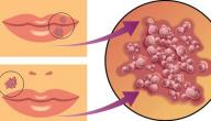 مرض الهربس الجلدي