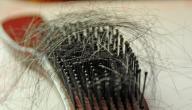 اسباب سقوط الشعر عند النساء