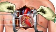 هل عملية قسطرة القلب خطيرة