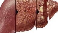 مضاعفات مرض تليف الكبد