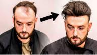 كيف تعالج تساقط الشعر