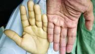 اعراض فقر الدم الحاد