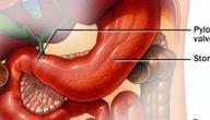 اسباب جرثومة المعدة