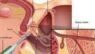 علاج تضخم البروستاتا بالاعشاب