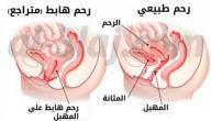 علامات نزول الرحم