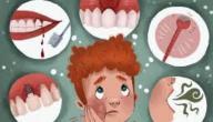 ما علاج فطريات الفم