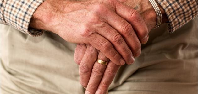 ما هو سبب مرض الاكزيما