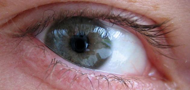 علاج وحمة أوتا داخل العين